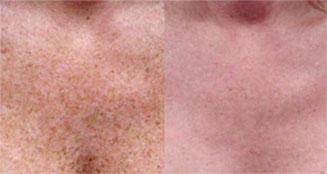 bouton lupus photo